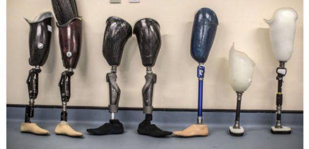 Recyclage des implants chirurgicaux après la crémation